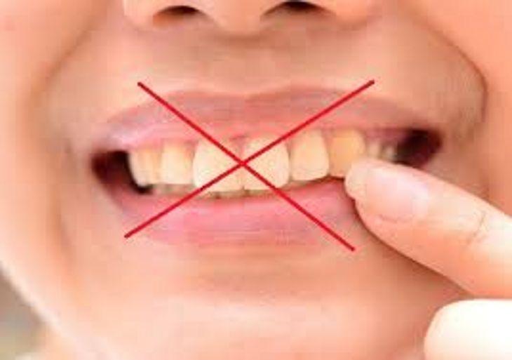 Conheca 15 Alimentos Que Deixam Os Dentes Amarelados Tnh1