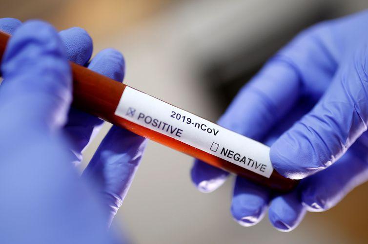 Teste de laboratório mostra resultado positivo para novo coronavírus Covid-19